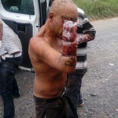 Mutilan manos a presuntos ladrones en Jalisco