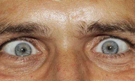Un gusano devorador de cerebros crece en el ojo de un hombre