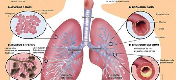 Qué tan graves son los síntomas de la hipertensión en la etapa uno