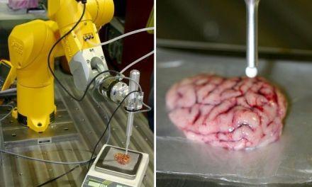 Un bisturí inteligente que detecta tumores cerebrales