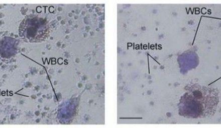 Una plataforma sensible y no invasiva detecta las células tumorales circulantes en pacientes con melanoma