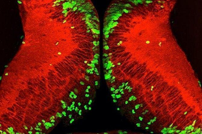 La falta de alimento detiene el desarrollo del cerebro, pero el proceso es reversible