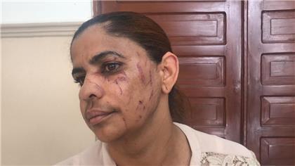 Conocerán medida de coerción a conserje que agredió directora de escuela en SFM.