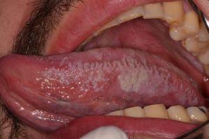 sintomas del herpes en la lengua