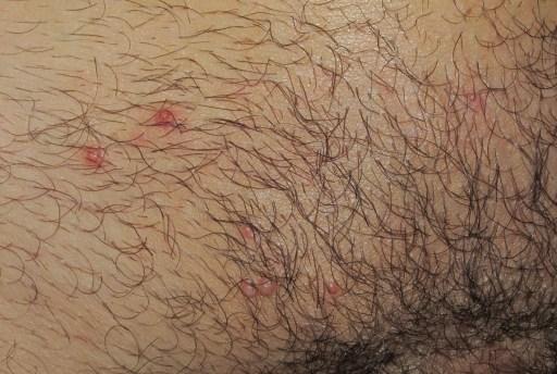 como identificar el herpes genital en los testiculos