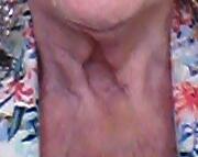Hålet i min hals efter den bortopererade sköldkörteln