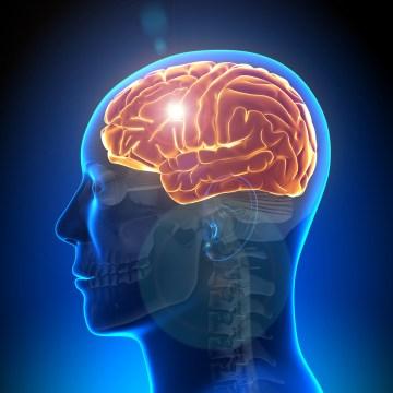 Stroke Neurological