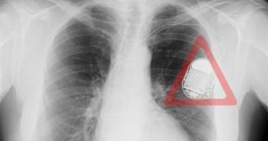 SANTE: Certains pacemakers peuvent être piratés, admettent les autorités américaines