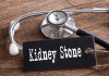 kidney stones prevention tips