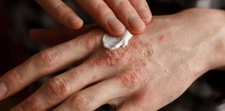 Common Causes of Eczema