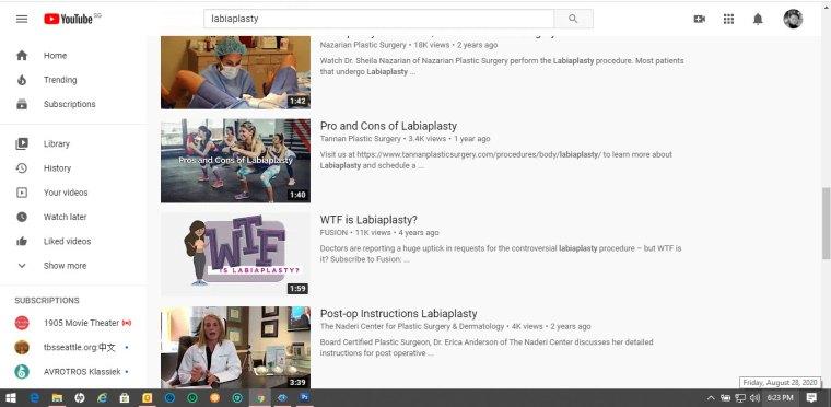 Youtube-labiaplasty-4