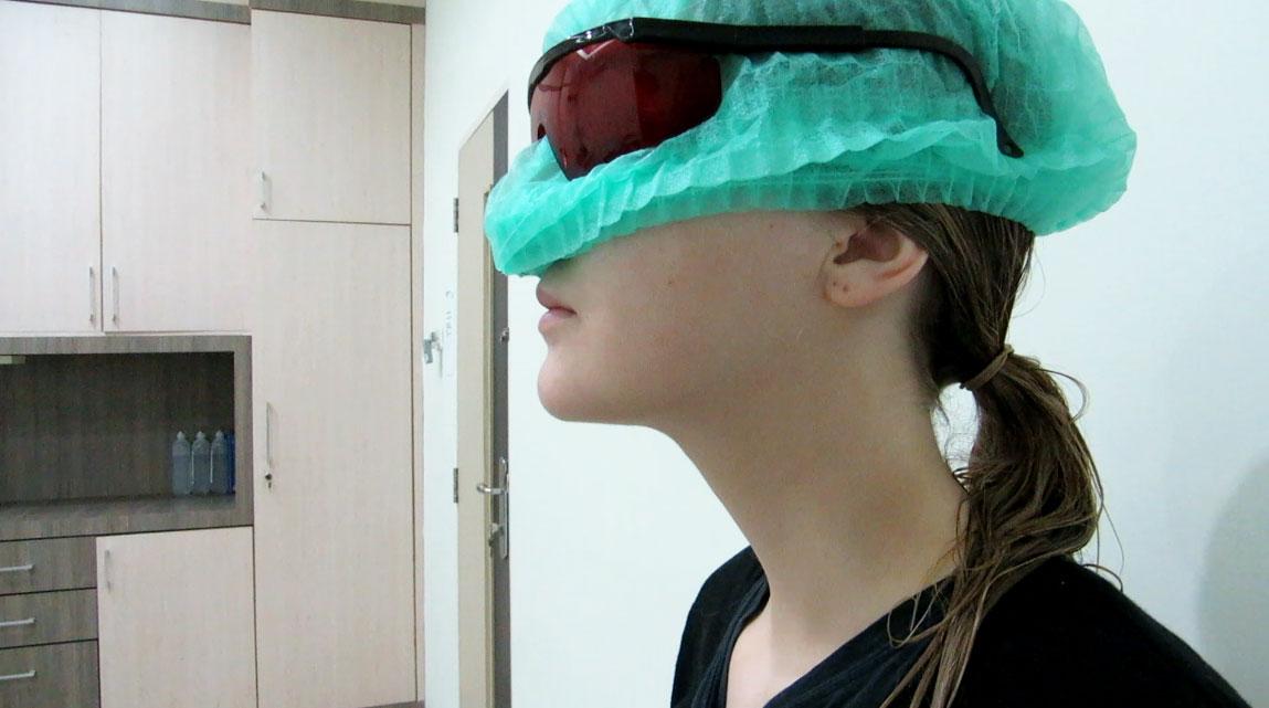 After double chin neck liposuction by Dr Arthur Tjandra of Elixir de Vie.