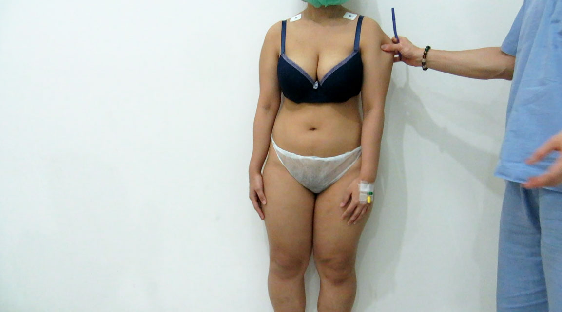Before arms, thighs and calves liposuction by Dr Arthur Tjandra of Elixir de Vie.