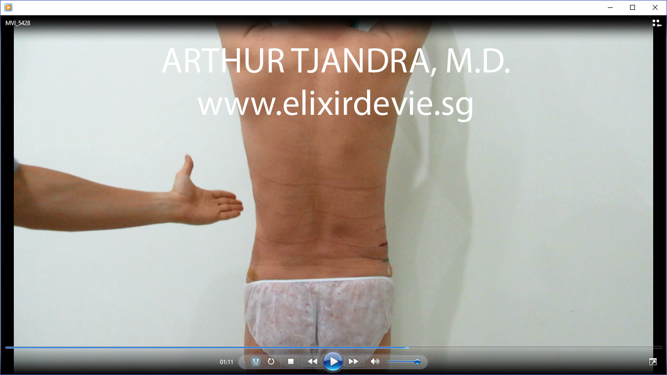 after 3D abdominal liposuction