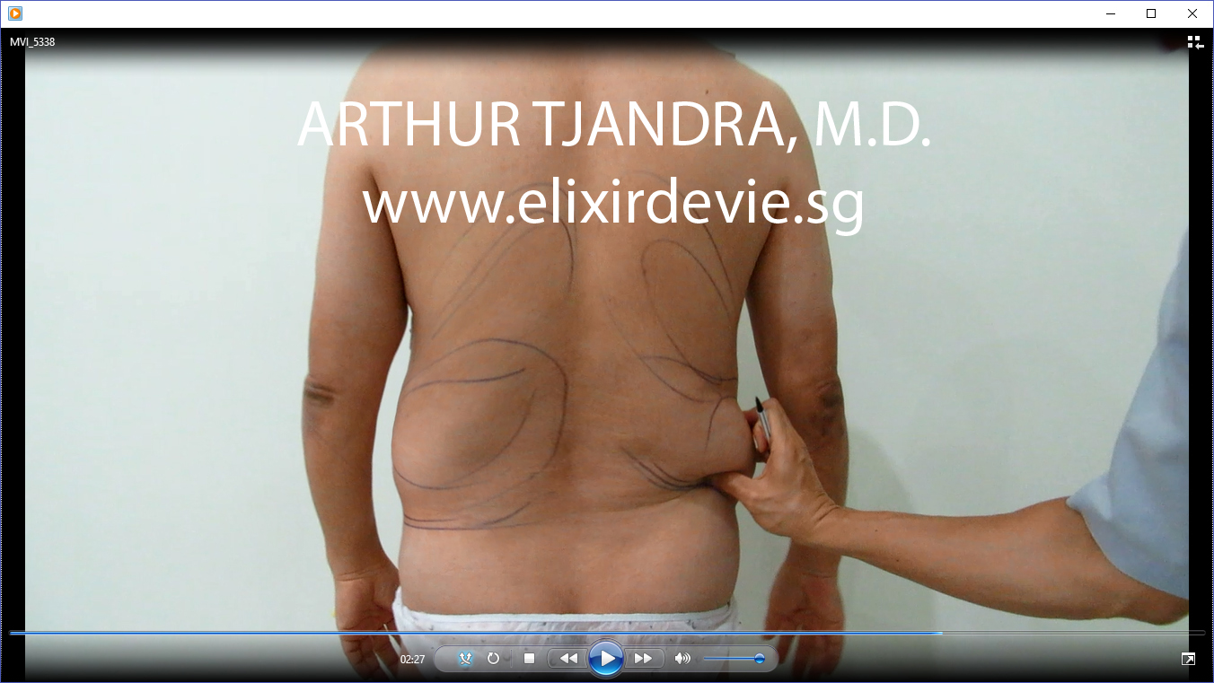 before 3D abdominal liposuction