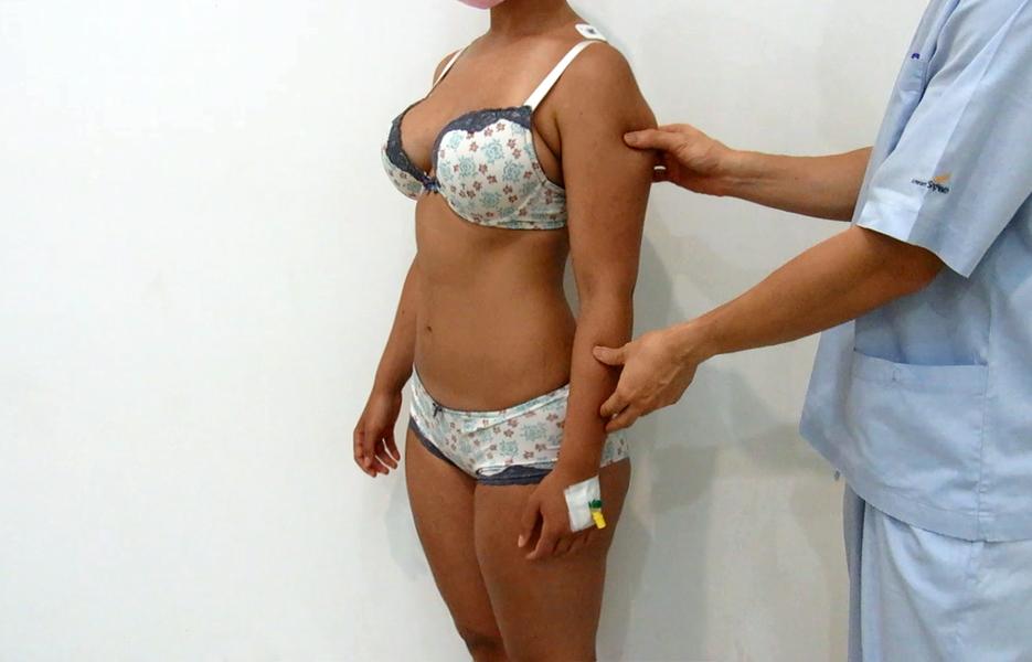 Before 3D high-definition arms liposuction by Dr Arthur Tjandra of Elixir de Vie.