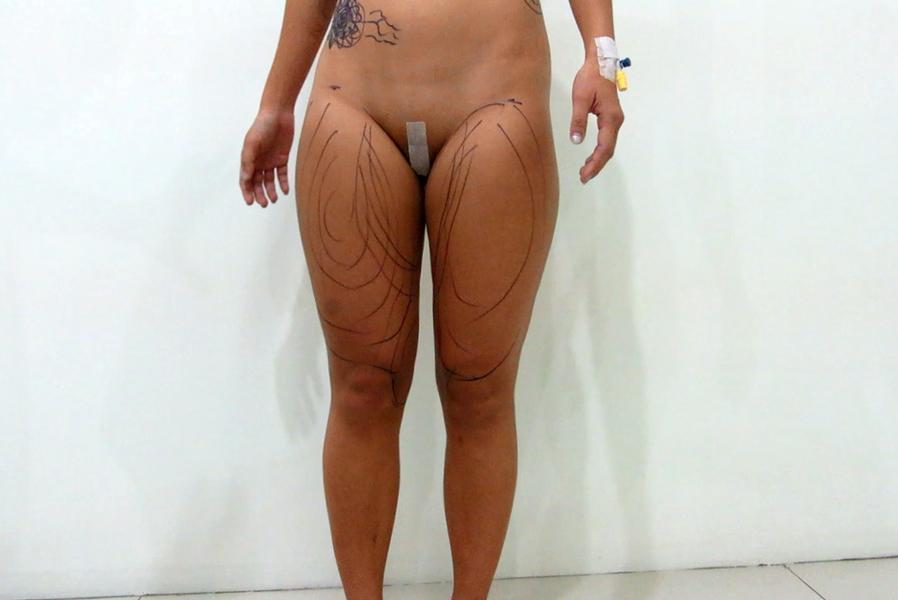 Inner thighs liposuction by Dr Arthur Tjandra of Elixir de Vie