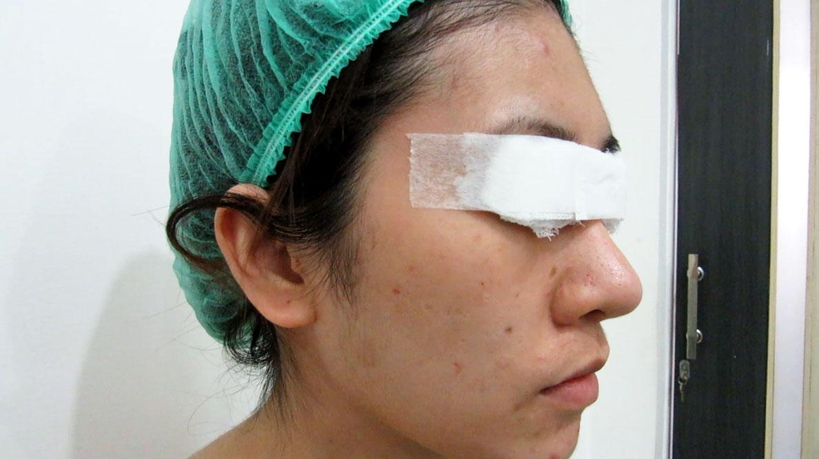 fat transfer facial rejuvenation and forehead augmentation by Dr Arthur Tjandra of Elixir de Vie