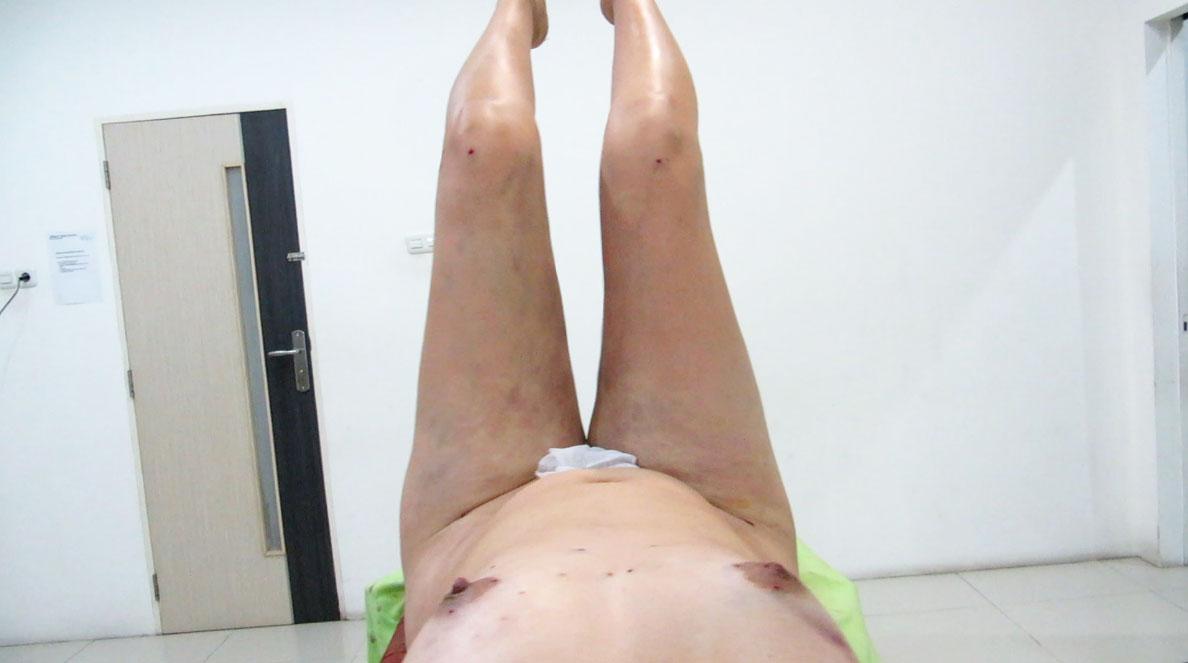 3D thighs liposuction by Dr Arthur Tjandra of Elixir de Vie