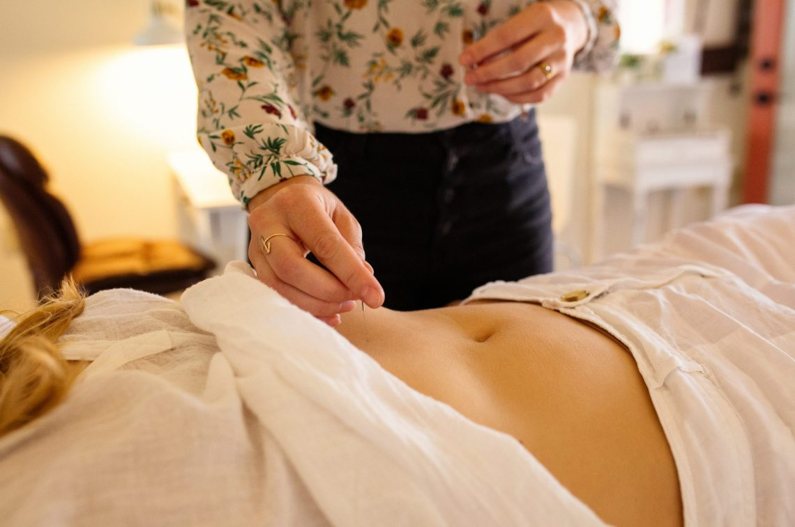 Acupuncture needles being placed in stomach of patient in close up lifestyle marketing photography session by California professional photographer Ella Sophie.