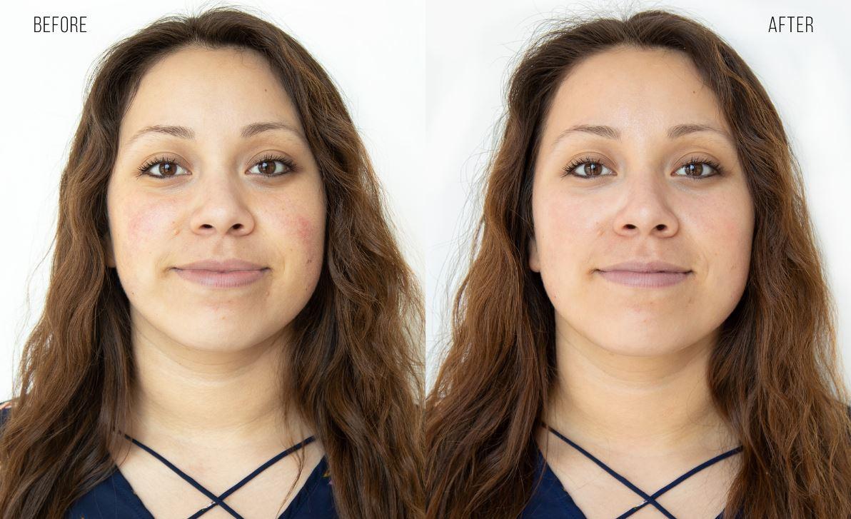woman smiling before and after hydrafacial treatment ellemes medical spa atlanta