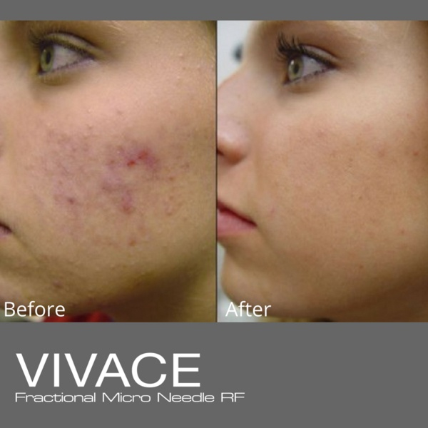 before and after vivace fractional microo needle RF treatment acne scars face ellemes medical spa atlanta