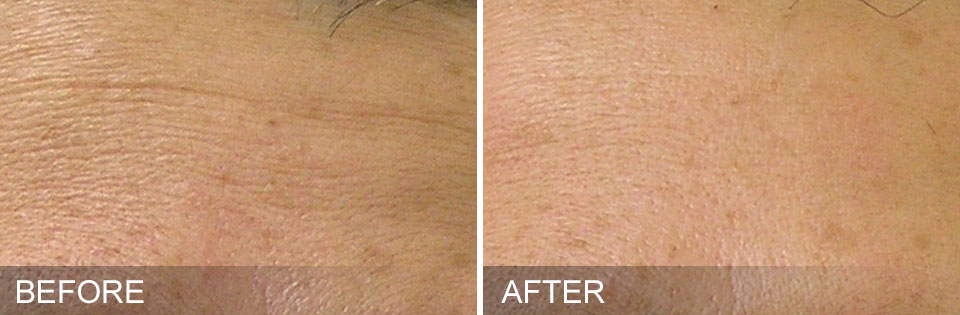 hydrafacial before and after photo forehead