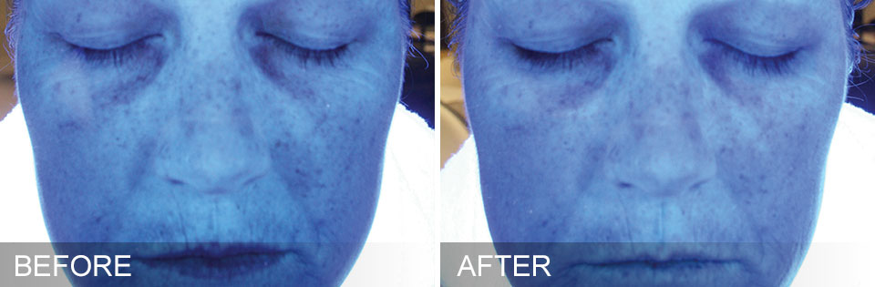 hydrafacial before and after photo face