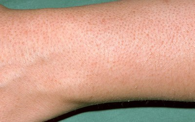 keratosis pilaris treatment arm ellemes medical spa atlanta