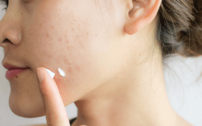 young woman with acne scars on cheek medical spa atlanta