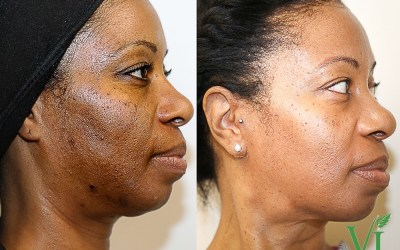 african american chemical peel