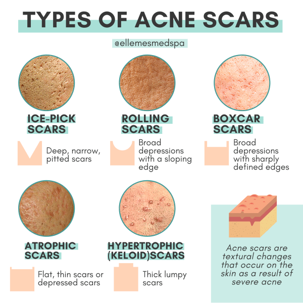 types of acne scars illustration