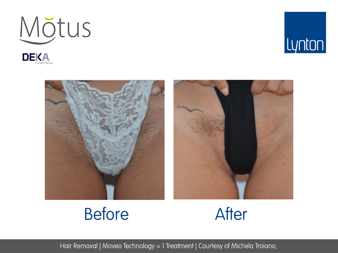laser hair removal motus before and after