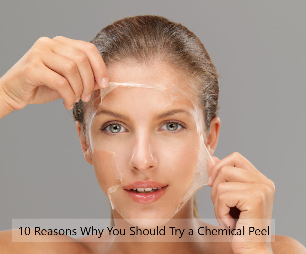 10 Reasons Why You Should Try a Chemical Peel