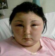 horrible allergic reaction