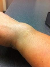My swollen wrist