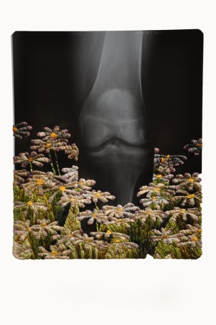 Knee and Daisies_web