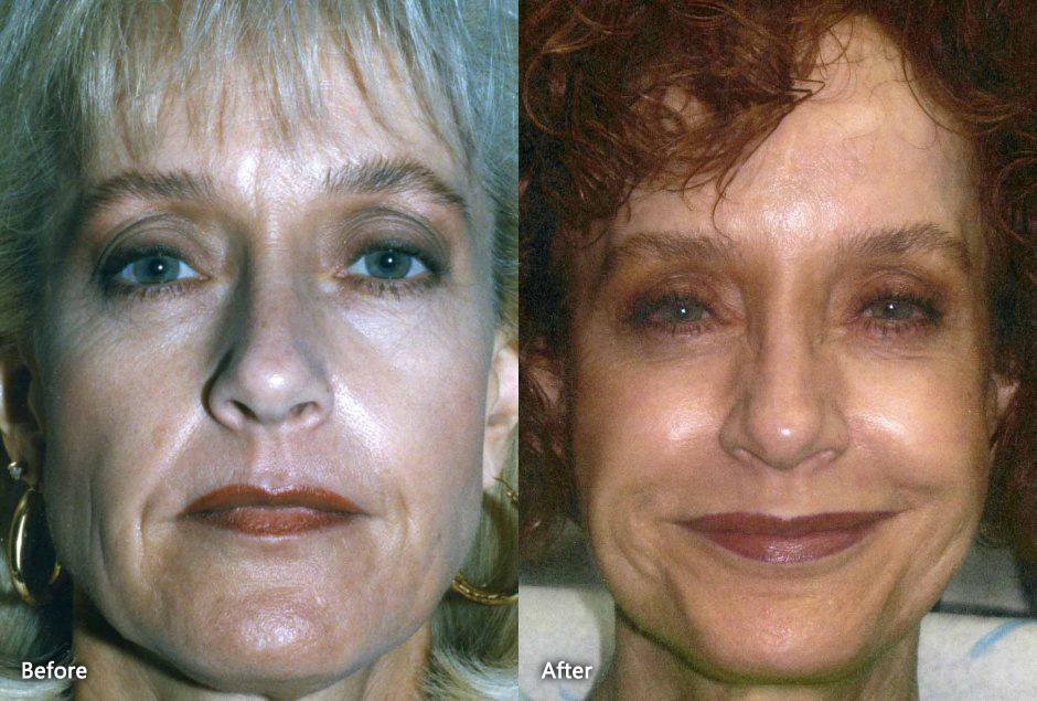 Forehead Lift in Danville CA   Elliott B, While generally used to correct sagging skin that develops with age, Livermore, Robert Gray, are one of the most commonly performed procedures at the office of Dr, Lavey MD