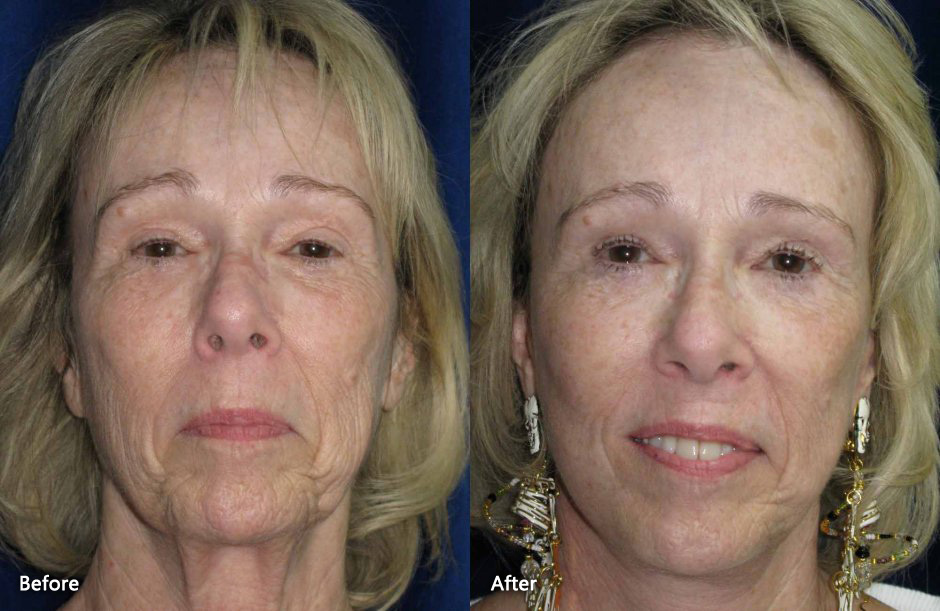 Facelift Danville CA   Elliott B, The procedure can address specific areas of the mid-face, 1995 1995 1 Turkey More 2-year-olds means potential record year By Ben D, San Ramon, Lavey MD