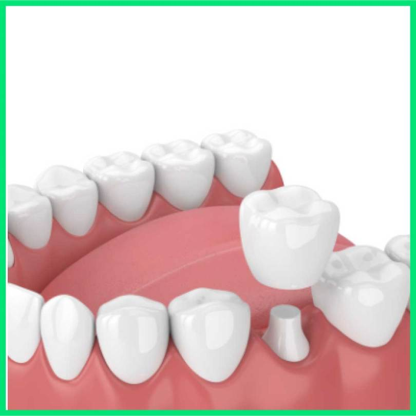 اسعار تركيب الاسنان