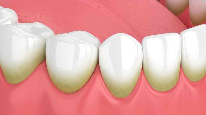 تنظيف الاسنان من الجير