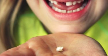ظهور الاسنان الدائمة خلف اللبنية