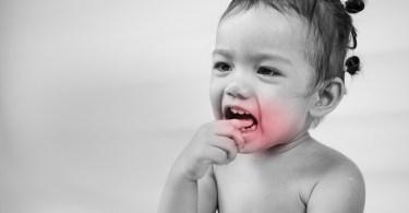 علاج الم الاسنان للاطفال