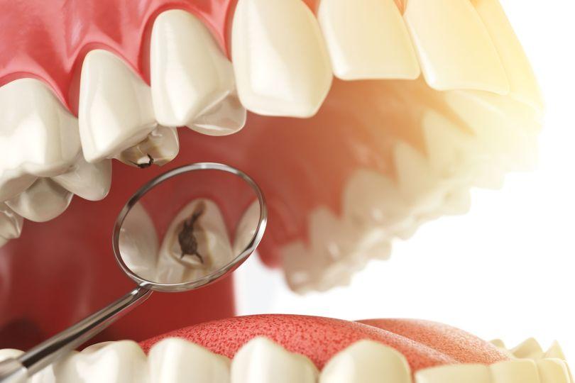 التخلص من تسوس الاسنان