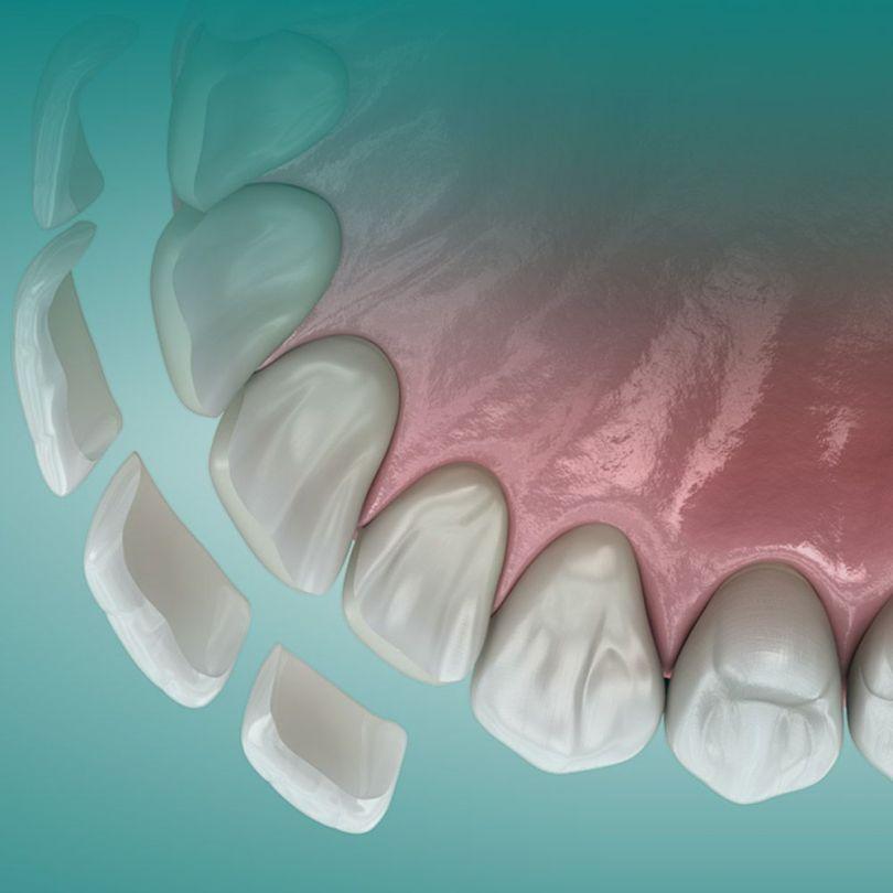 عدسات الاسنان الفينير