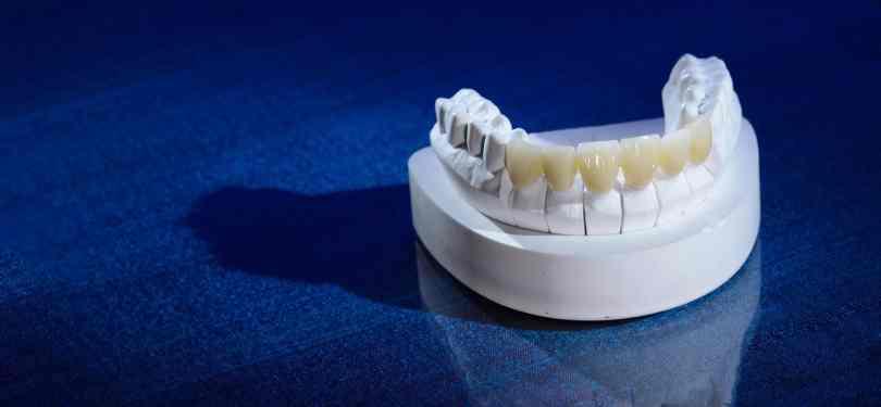 افضل تركيبات الاسنان الامامية