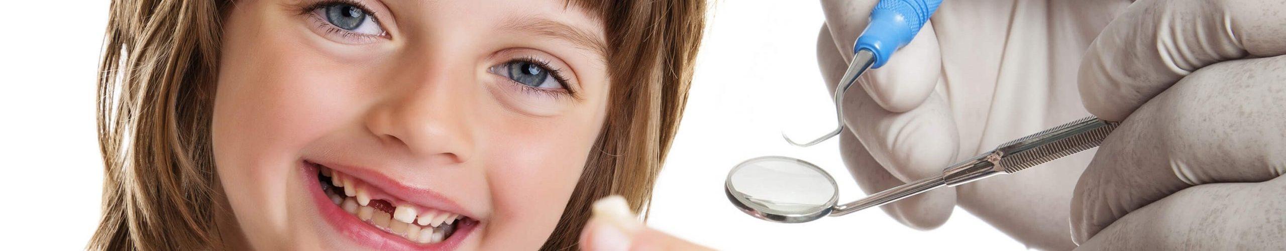خلع الاسنان اللبنية المسوسة