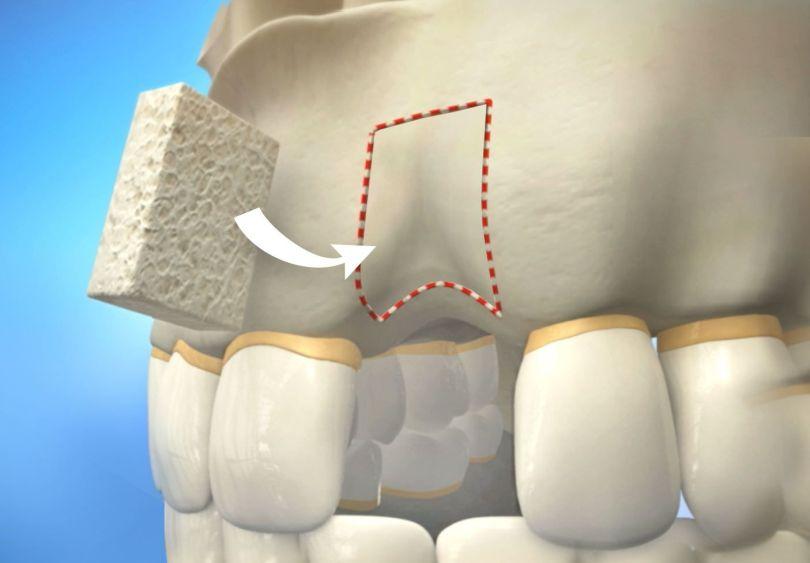 كم تكلفة زراعة عظام الاسنان