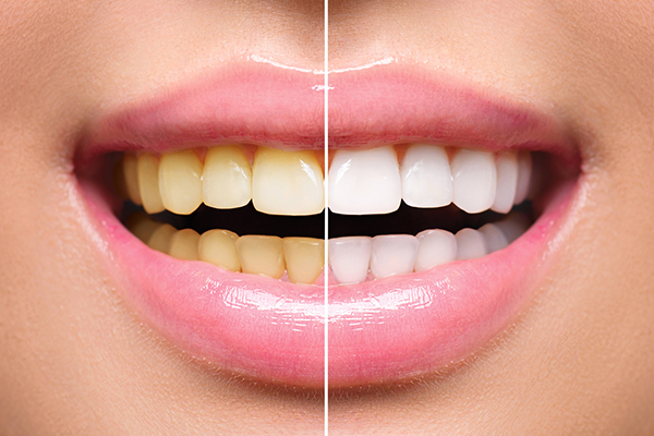 teeth whitening in sherburn