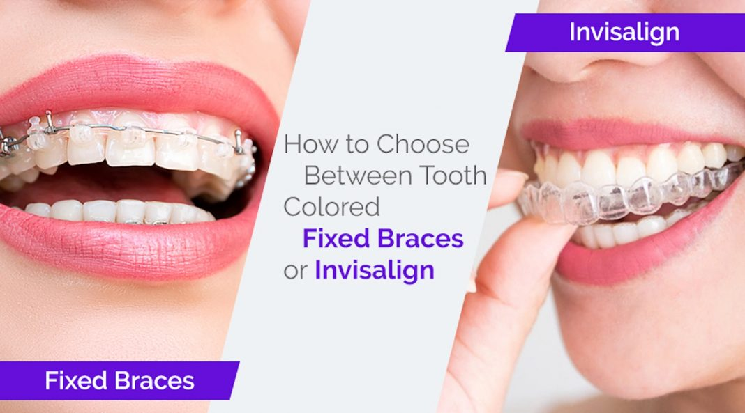 How to Choose Between Tooth Colored Fixed Braces or ...